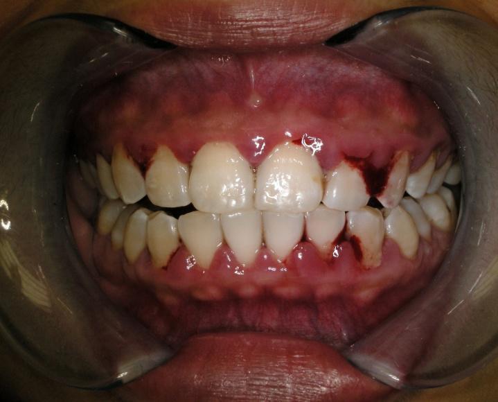 dentalni hygiena